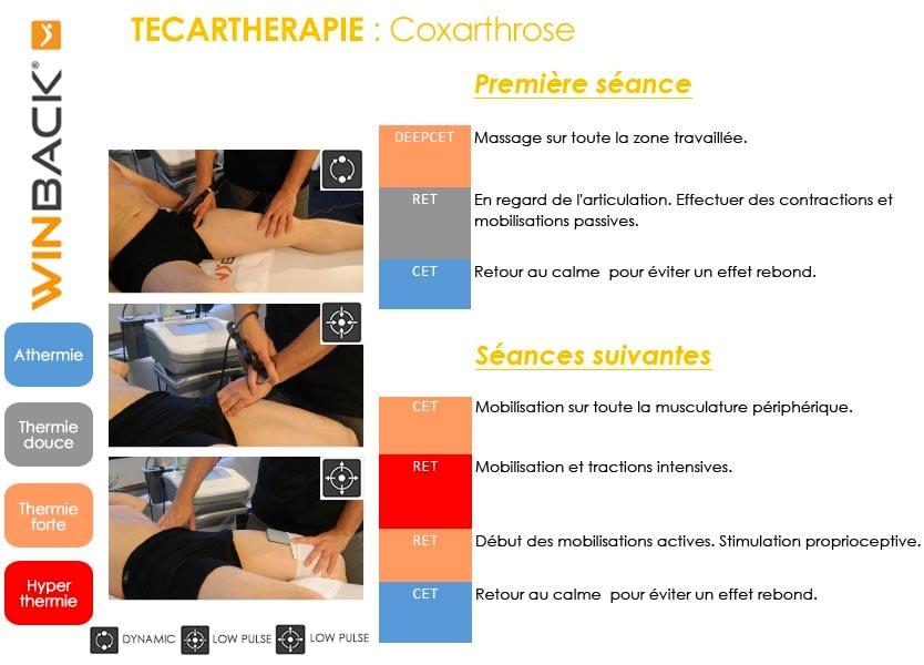 Cox arthrose