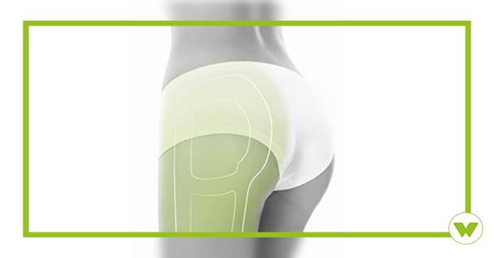 Cellulite Winback