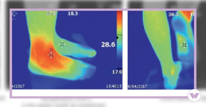winback-energie-camera-tecartherapie