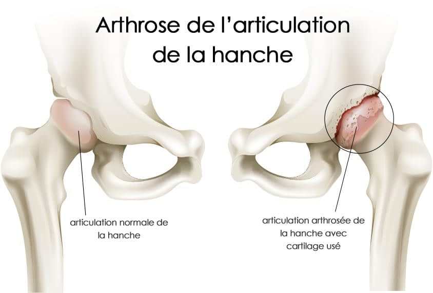 arthrose-hanche